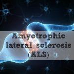 ALSの患者さんはどのタイミングで神経内科医とかかりつけ医/在宅医との併診とするべきか