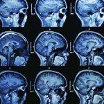 画像や検査結果の判断はAIの仕事となると、医師の仕事何になるのか?本質が問われる時代になりそうです。