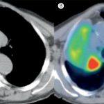 【患者さん、家族の方へ】肺癌患者さんの在宅緩和ケアのポイント