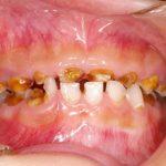 【口腔崩壊って知っていますか?】子供の歯の問題って親の問題でもありますよね・・・