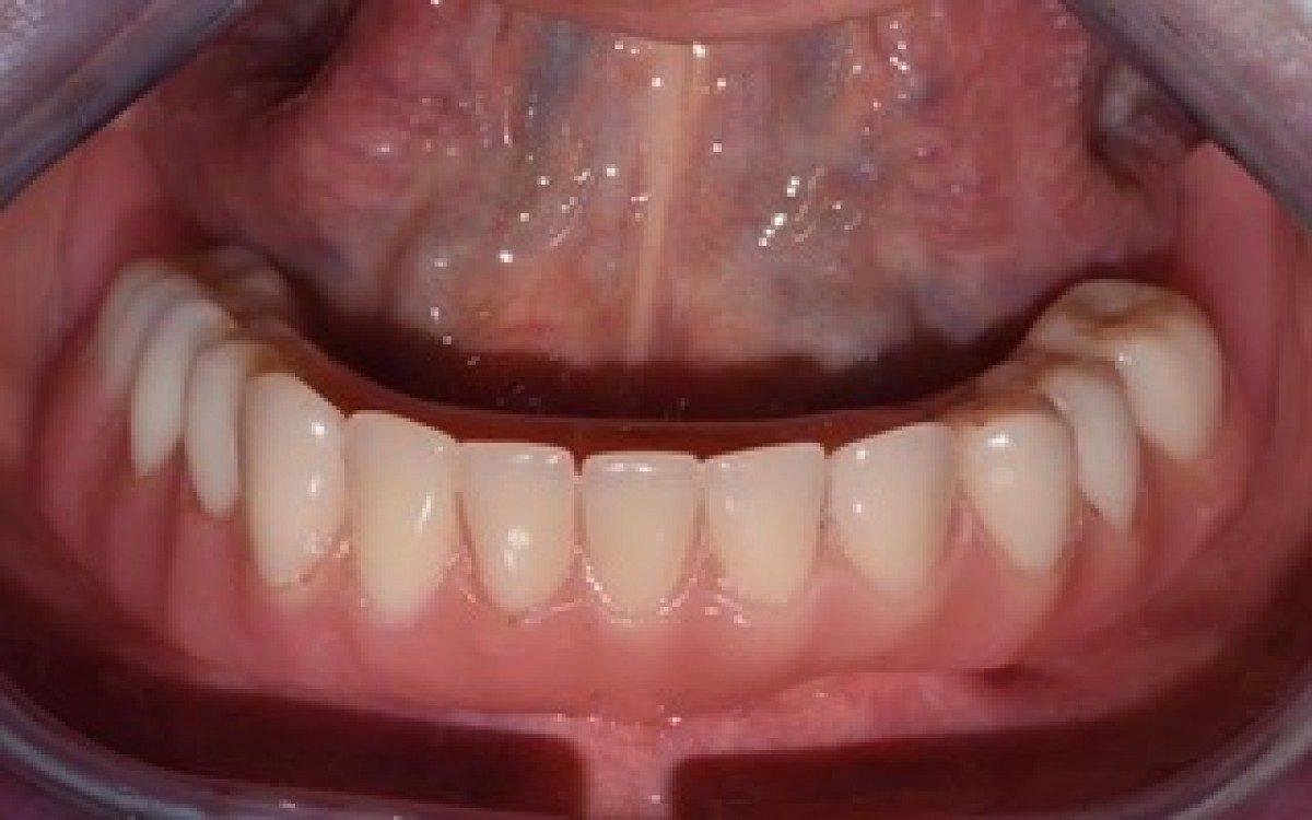 外来患者さんの口腔ケアやオーラルフレイル、できる限り気にしたいと思っています。