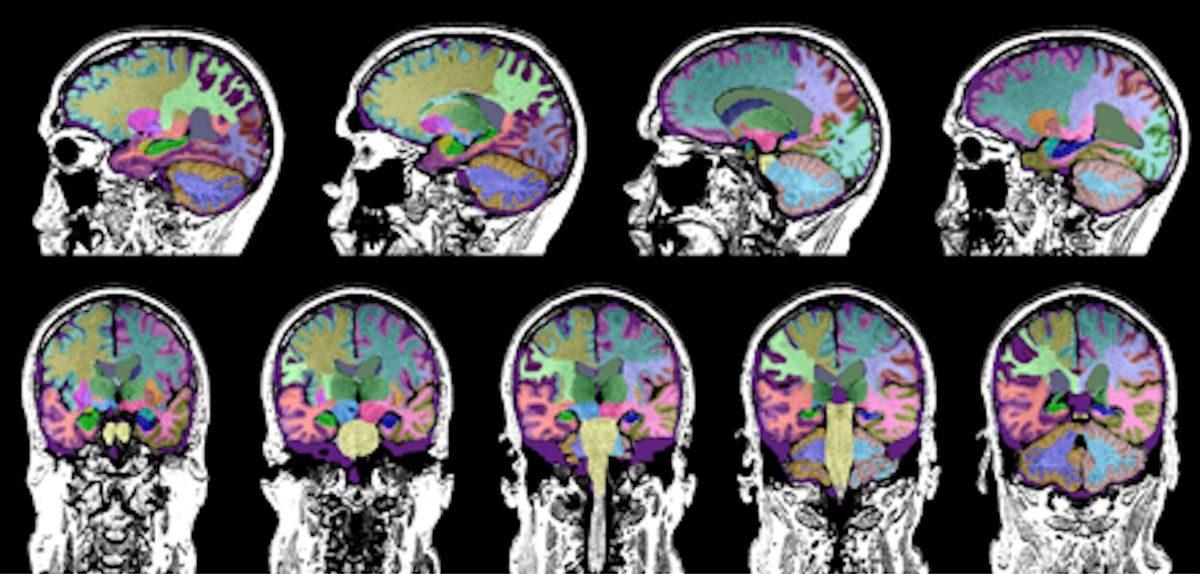 認知症専門外来=診断と投薬加療のみ・・・これが本当の認知症外来なんでしょうか?