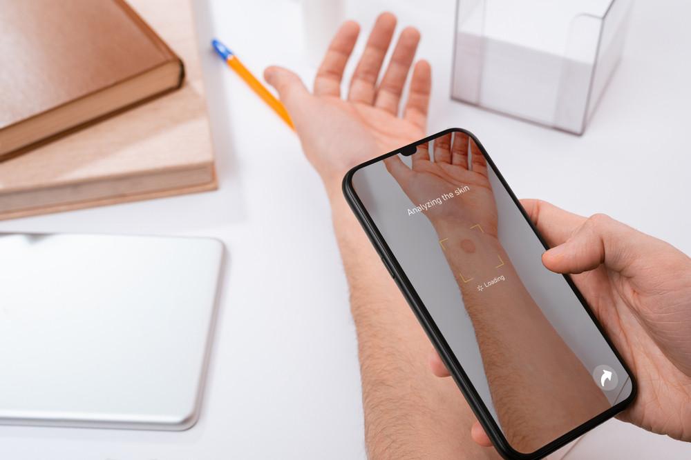 皮膚のトラブルはAIにお任せ?~AI×スマホのカメラで皮膚疾患を判定! Googleの新サービス、年内に欧州で試験公開予定
